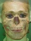 Skull and Brad Pitt